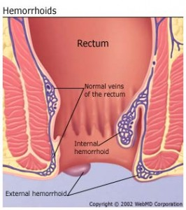 Schematic of the Rectum