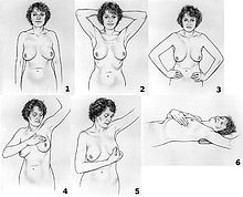 Steps in Breast Self Examination