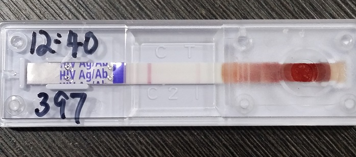 HIV Combo Duo Test P24 Ag/Ab | Singapore Clinic Dr Tan And Partners