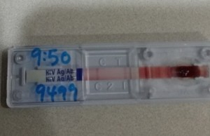 SD Bioline HIV Combo Test showing a positive result (2 red bars)
