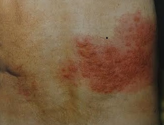 Herpes Zoster Shingles Gp Services
