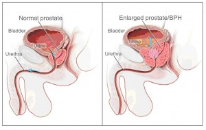 Fig 2: Left image shows normal anatomy. Right image shows an enlarged prostate causing bladder outlet obstruction.